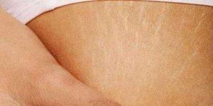 vücut çatlakları için tedavi yöntemleri